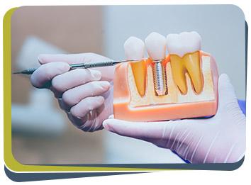 Dental Implants - Prabhdeep K. Gill DDS Near Me in Fresno, CA