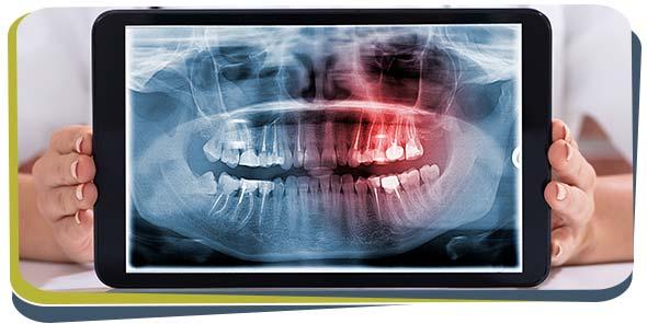 Digital Dental X-Rays Near Me in Fresno, CA