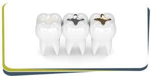 Dental Fillings Near Me in Fresno, CA