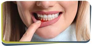 Gum Disease Treatment Near Me in Fresno, CA