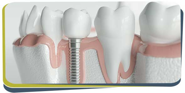 Tooth Replacement Specialist Near Me in Fresno, CA