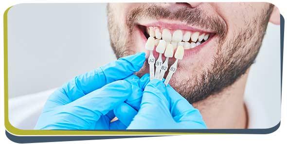 Dental Veneers Near Me in Fresno, CA